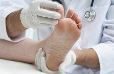 Лікування грибка нігтів при вагітності: безпечні засоби