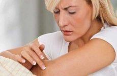 Види псоріазу: особливості, симптоматика, ефективні методи лікування