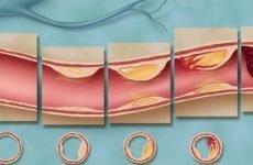 Атеросклероз судин головного мозку: симптоми і лікування захворювання