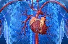 Інфаркт міокарда — загальна класифікація серцевої патології
