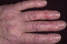 Відмороження 1 ступеня: характерні ознаки, причини виникнення, перша допомога, лікування та профілактика