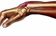 ЛФК після перелому променевої кістки: у чому користь?