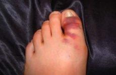 Перелом великого пальця ноги: симптоми і лікування, реабілітація та наслідки