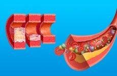 Первинна та вторинна профілактика ризику атеросклерозу