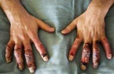 Дії при відмороженні кінцівок: перша допомога при травмах різного ступеня тяжкості