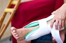 Симптоми перелому кісточки