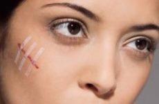 Крем від рубців на обличчі: як правильно підібрати мазь від шрамів і від чого залежить ефективність засобу