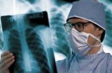 Якщо при пневмонії ні кашлю, може не бути температури?