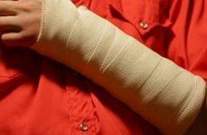 Вибираємо мазь після перелому руки