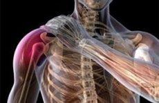 Перелом великого горбка плечової кістки зі зміщенням і без: лікування та реабілітація