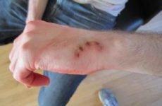 Чим небезпечні укушені рани: обробка, лікування і надання першої допомоги при травмах після укусу