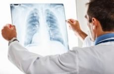 Техніка накладання венозних джгутів при набряку легень: алгоритм дій, ускладнення при відсутності допомоги