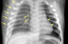 Ускладнення перелому ребер: які травми є найбільш небезпечними, особливості супутніх ускладнень