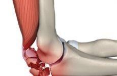 Перелом ліктьового суглоба із зміщенням і без: лікування і розробка руки