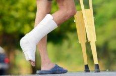 Фізіолікування після перелому – запорука повного відновлення