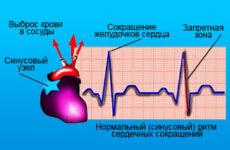 Що таке синусова тахіаритмія