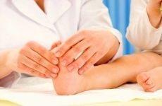 Грибок нігтів у дітей: лікування та профілактика