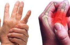 Закритий перелом пальця: причини, різновиди, симптоматичні характеристики, діагностика і способи лікування