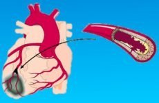 Інфаркт міокарда без зубця q і з зубцем q