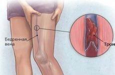 Що таке илеофеморальный тромбоз і які його симптоми?