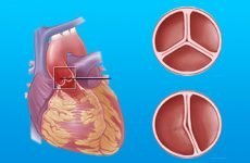 Порок мітрального клапана: ревматичний, комбінований і поєднаний