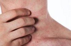 Червоний плоский лишай: причини, симптоми і лікування. Як і чим лікувати червоний плоский лишай в порожнині рота