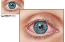 Чим лікувати кон'юнктивіт у дітей: захист від червоних око
