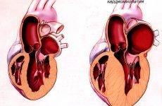 Особливості гіпертрофічній кардіоміопатії