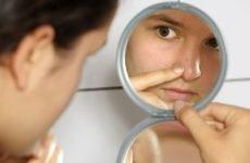 Жировик на носі: причини і симптоми, лікування у лікаря і вдома