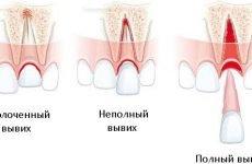 Вивих зуба: повний, неповний і вколочений, симптоми і лікування, реабілітація