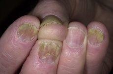 Народні засоби від грибка нігтів на руках – 8 рецептів