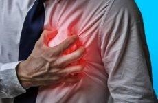 Що таке обширний інфаркт, його наслідки і шанси вижити
