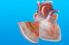 Фібринозний або сухий перикардит: симптоми і лікування