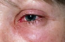 Які існують опіки очей і як правильно допомогти потерпілому