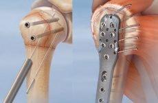Операція з пластиною при переломі плеча зі зміщенням: показання та особливості проведення
