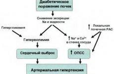 Лікування гіпертонії при цукровому діабеті 1 та 2 типу: харчування, дієта та препарати