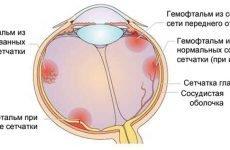 Лопаються судини (капіляри) в очах: причини, лікування і що робити