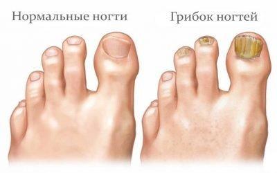 Ламізил в лікуванні гребка нігтів: крем, спрей та їх аналоги