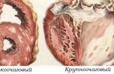 Діагностика постінфарктного кардіосклерозу — частої причини смерті при ІХС