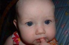 В якому порядку та коли у дітей прорізуються зубки