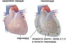 Діагностика та лікування тампонади серця