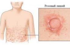 Лікування рожевого лишаю у людини медикаментозними препаратами, ліками і таблетками