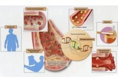 Зміцнення стінок судин і капілярів препаратами і народними засобами