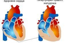 Діагностика та лікування гіпертрофії правого шлуночка