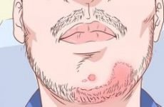 Псоріаз на обличчі: причини і лікування. Як і чим лікувати псоріаз на обличчі, губах мазями
