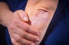 Лікування рожевого лишаю у людини: препарати, мазь, як лікувати народними засобами?