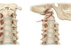 Шийний остеохондроз і артеріальний тиск може підвищуватися і яка взаємозв'язок