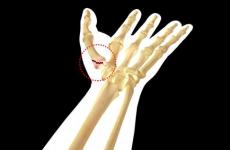 Перелом або забій пальця: механізми розвитку, симптоматика та особливості лікування