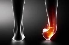 Перелом п'яти зі зміщенням: особливості травми, причини перелому, діагностика і методи лікування