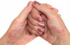 Лікування псоріазу в домашніх умовах народними засобами. Як вилікувати псоріаз будинку назавжди